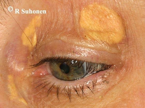KV Холестериновые бляшки на коже: перый сингнал о повышенном уровне холестерина. | MedFin