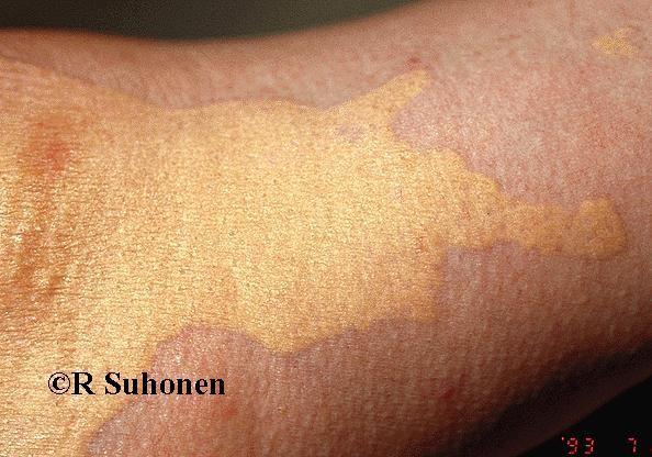 KV2 Холестериновые бляшки на коже: перый сингнал о повышенном уровне холестерина. | MedFin